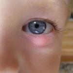 Правила лечения ячменя у ребенка