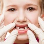 Советы и рекомендации по лечению гингивита у детей