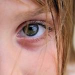 Почему появляется ячмень на глазу у ребенка?