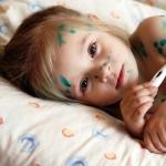 Как проявляется ветрянка у детей: симптомы и признаки