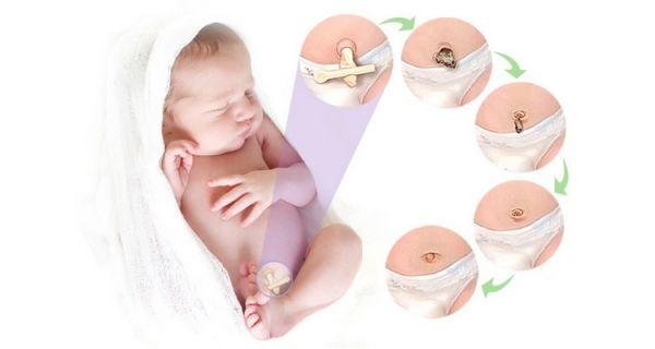 Как должен зажить пупок у новорожденного