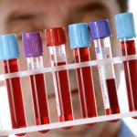 Повышенное содержание тромбоцитов в крови у ребенка и его значение
