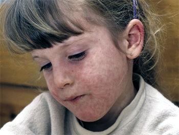 Корь, скарлатина, краснуха и ветрянка - причины сыпи на лице у ребенка