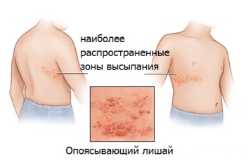 Лечение розового лишая у детей, виды лишаев