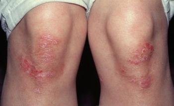 Кожные заболевания у детей: фото и описание болезней нервной системы