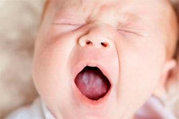 Один из симптомов диатеза у новорожденных детей