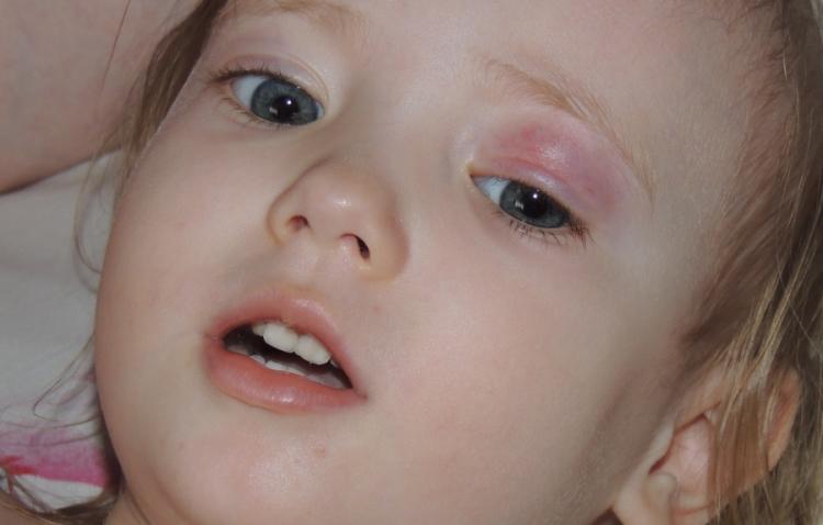 Халязион верхнего века у ребенка: фото