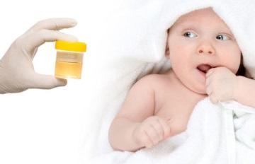 Перед тем как собрать мочу у грудничка мальчика необходимо тщательно подмыть малыша