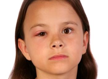 Чем отличается халязион от ячменя у ребенка?