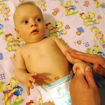 Симптомы и признаки энцефалопатии у детей