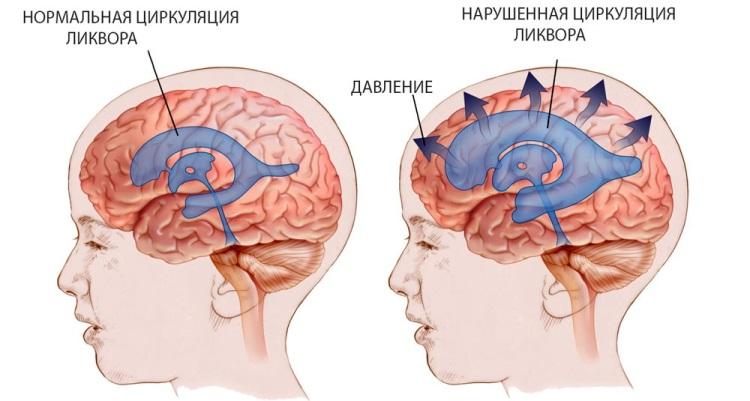Каковы признаки и лечение гидроцефалии головного мозга у детей