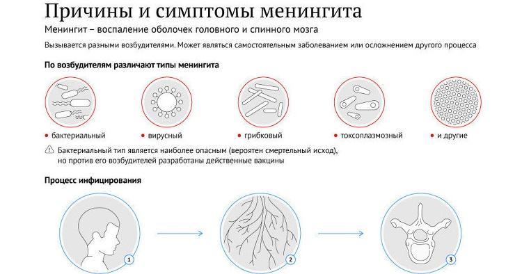 Причины и симптомы менингита у детей
