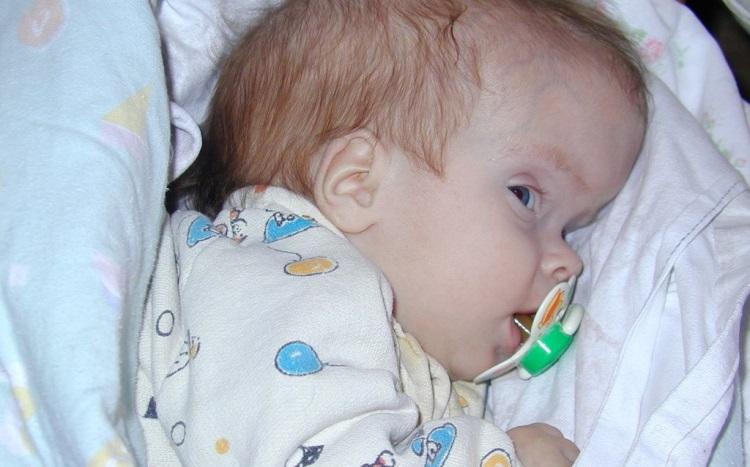 Симптомы и причины развития гидроцефалии головного мозга у детей