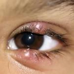 Лечение ячменя на глазу у ребенка: методы и способы