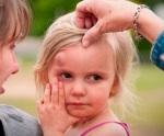 Первые действия, если ребенок сильно ударился головой