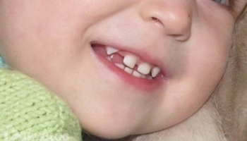 Схема и график прорезывания молочных зубов у детей: отклонения от нормы и их причины