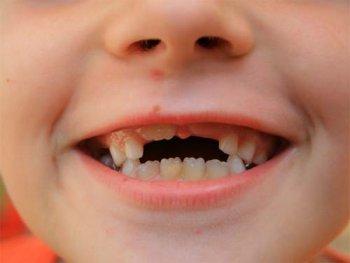 Симптомы прорезывания постоянных зубов