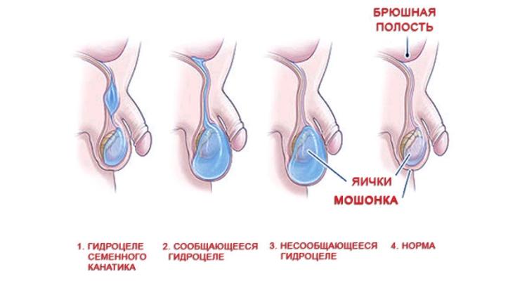 Водянка яичек у новорожденных мальчиков: как часто встречается, в каком возрасте?