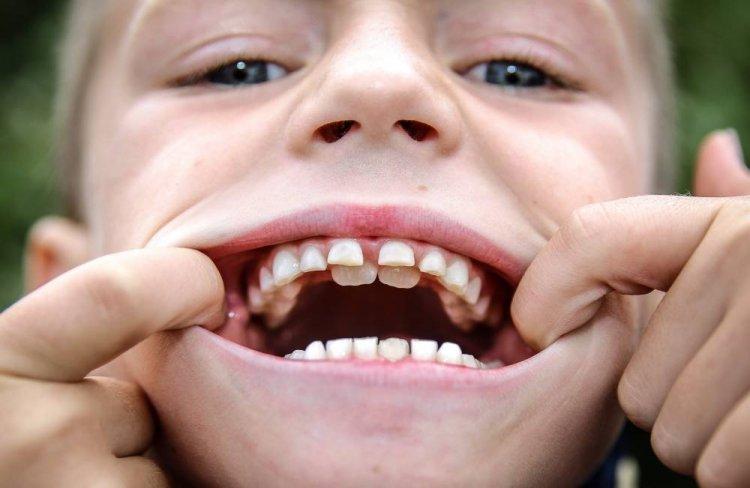 Последовательность прорезывания коренных зубов