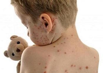 При каких заболеваниях у детей можно использовать мазь Ацикловир