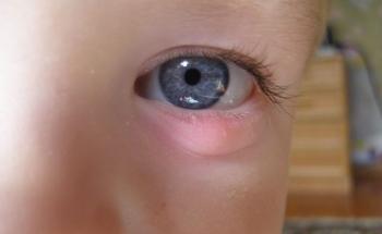 Мазь Вишневского: инструкция по применению для детей при глазных инфекциях
