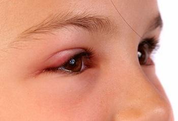 Халязион у детей - какие существуют методы лечения болезни