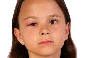 Почему возникает халязион у детей - основные причины