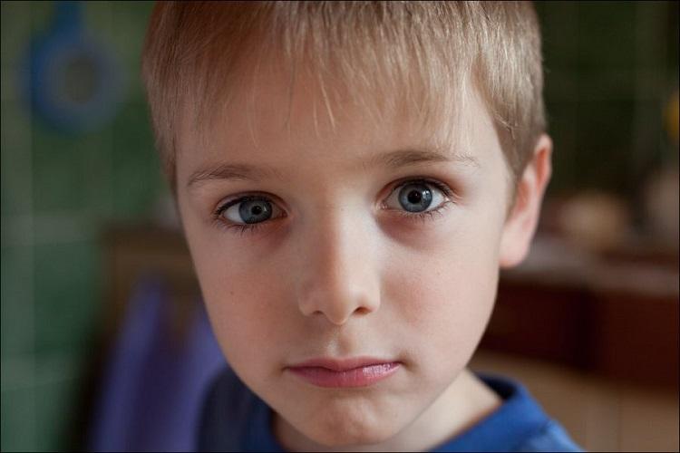 Анизокория - описание заболевания глаз у детей е его причины