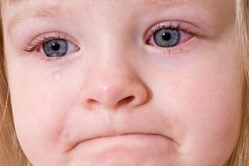Красная припухлость под глазами у ребенка - о чем говорит этот симптом