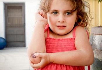 Мазь Спасатель - инструкция и показания к применению детям