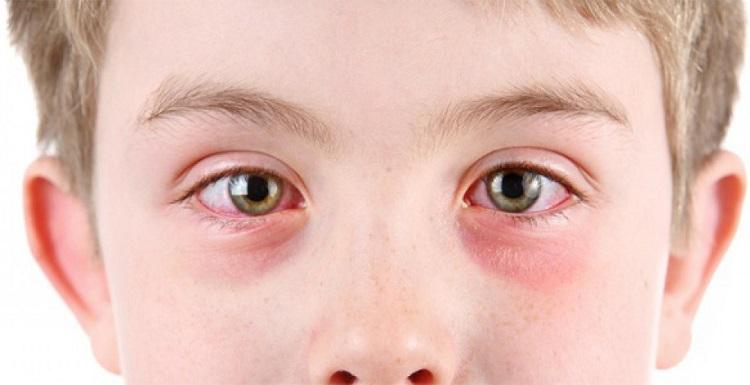Уевит у детей - основные симптомы и признаки заболевания глаз