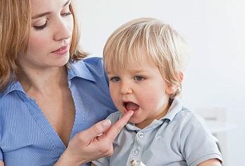 Как правильно нанести обезболивающий гель от зубной боли для детей